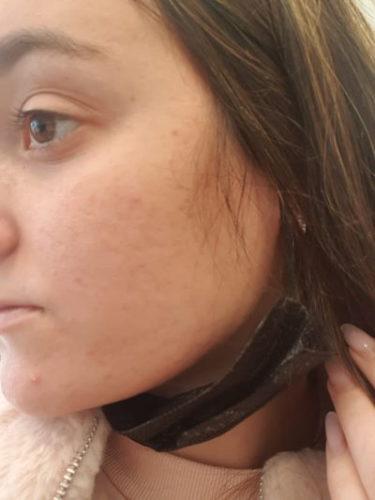 עדן האריש אחרי טיפול באקנה עם מוצרי חוה זינגבוים